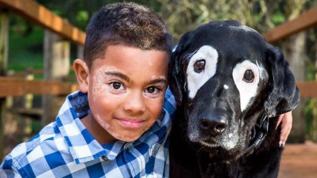 白斑で悩んでいた少年、「双子の片割れ」の犬に出会い元気と自信を取り戻す!のアイキャッチ
